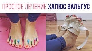 Косточка на ноге (халюс вальгус) и другие болезни