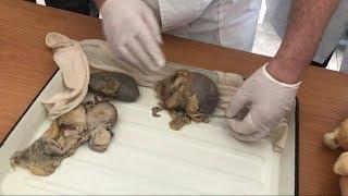 Анатомия. Мужская и Женская Мочевыделительная Система (Ч1)