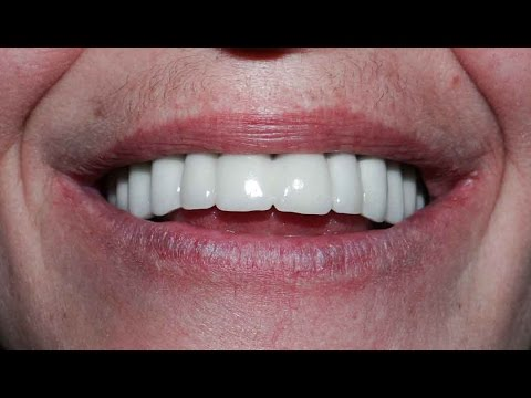 Full mouth reconstruction in Bulgaria - before and after photos