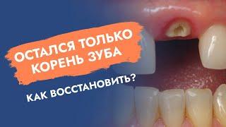 Остался только корень зуба. Как восстановить?
