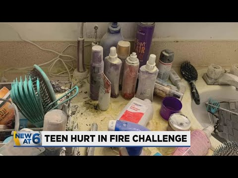 13-year-old severely burned while attempting TikTok challenge, Portland family says