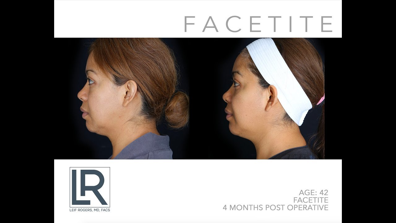 Non-Surgical Face Lift with FaceTite