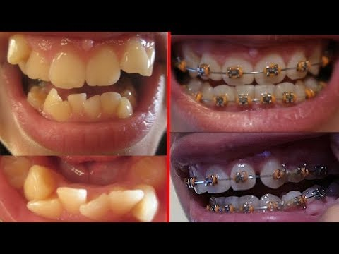 1 YEAR BRACES UPDATE | Gingivitis, Rubberbands, and MORE ...  1 YEAR BRACES U...
