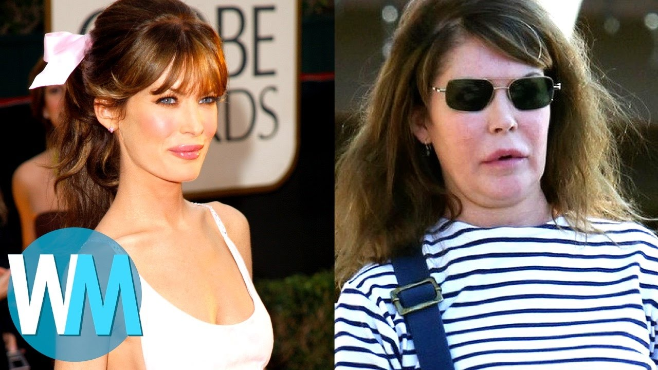 Top 10 Celebrities With Terrible Plastic Surgery Youtube