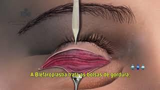 Blefaroplastia - @tododiaplastica  (Dra Mariana Fernandes  CRM SC 18651   RQE 18864)