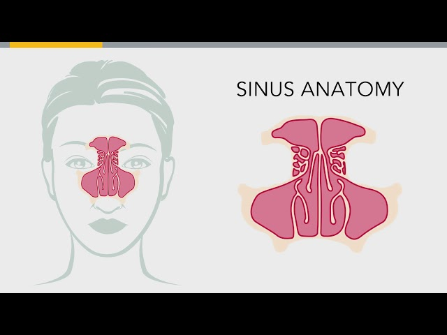 What to Expect from Sinus Surgery