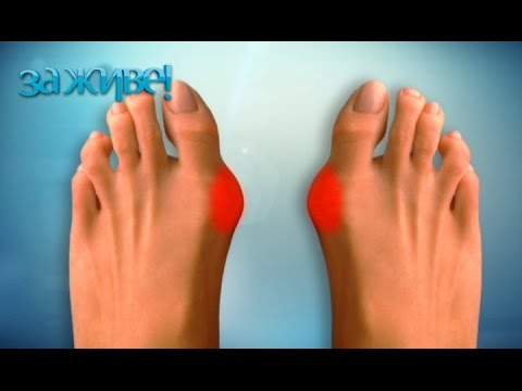Магнитный пластырь от косточек на ногах избавляемся от проблемы и дискомфорта