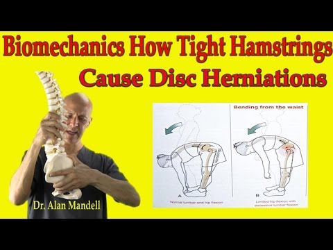 Biomechanics How Tight Hamstrings Cause Disc Herniations - Dr Mandell