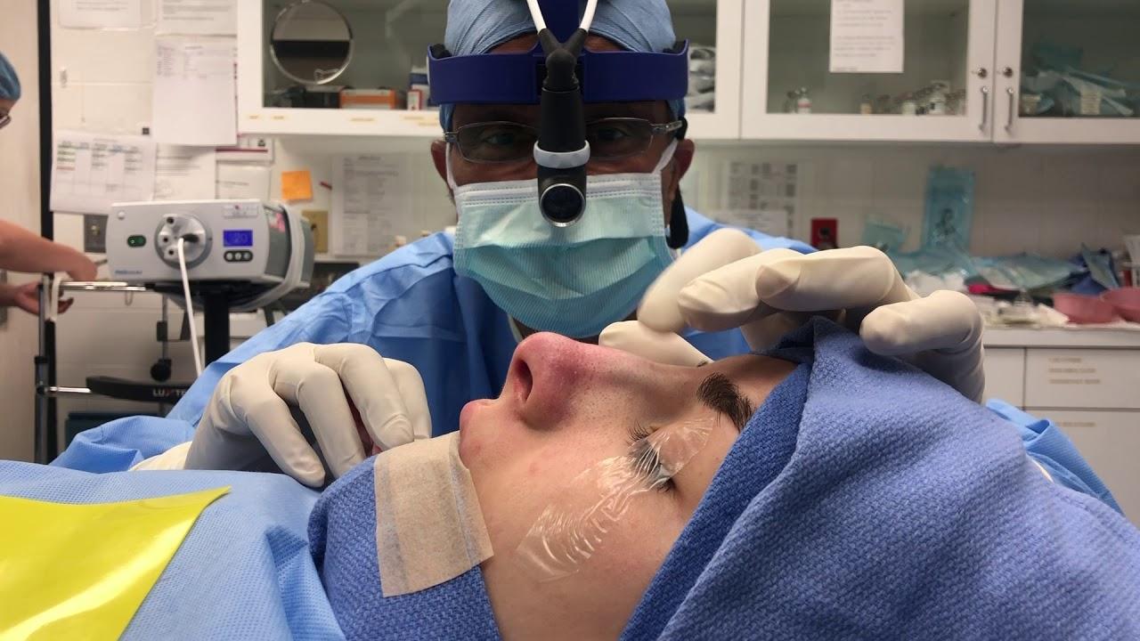 Download Emma's Scarless Closed Rhinoplasty - Dr. Raj Kanodia