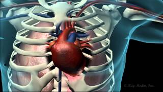 Coronary Heart Disease Animation