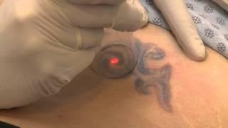 Tattoo Removal - Lipodoc Thumbnail