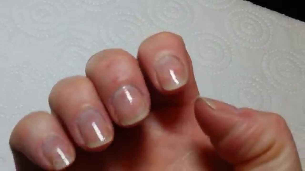 day 1 of using Nail Envy to strengthen my nails soft & thin formula ...