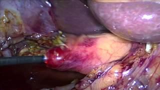 Laparoscopic Transcystic Common Bile Duct Exploration
