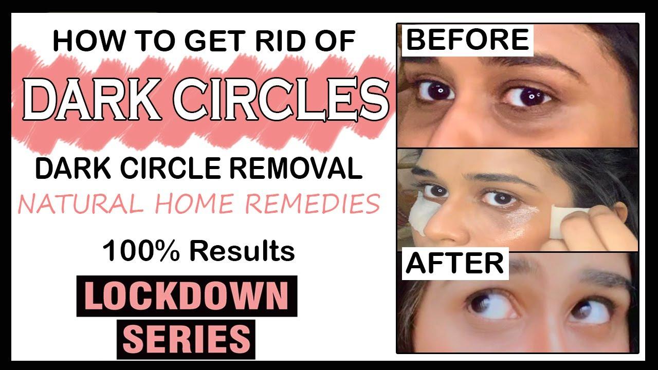 How to get RID of Dark Circles || Dark Circles removal ...