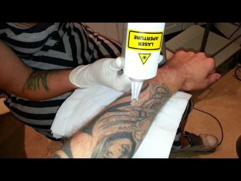 Laser Tattoo Removal at True Colours Tattoo Studio in Preston UK