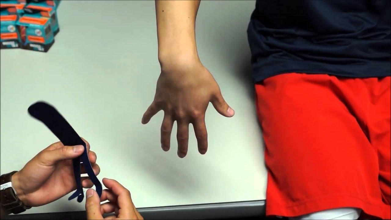 térdváltozások rheumatoid arthritisben