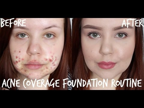 Acne Coverage Foundation Routine | Full Coverage for Cystic Acne/Scarring
