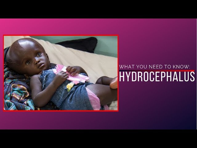 Hydrocephalus - What You Need To Know