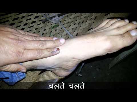 मोच का घरेलु और देसी इलाज | Moch Ka Desi or Gharelu Upchar