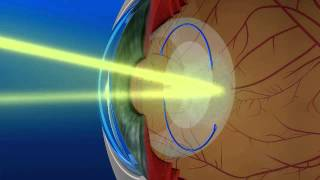 YAG laser used after cataract surgery