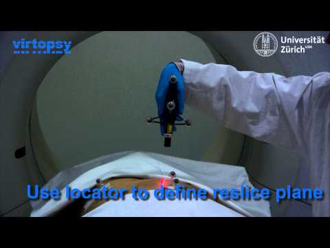 Virtual autopsy using computer assisted navigation techniques