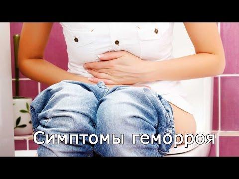 Геморрой внутренний и внешний. Симптомы, признаки, стадии