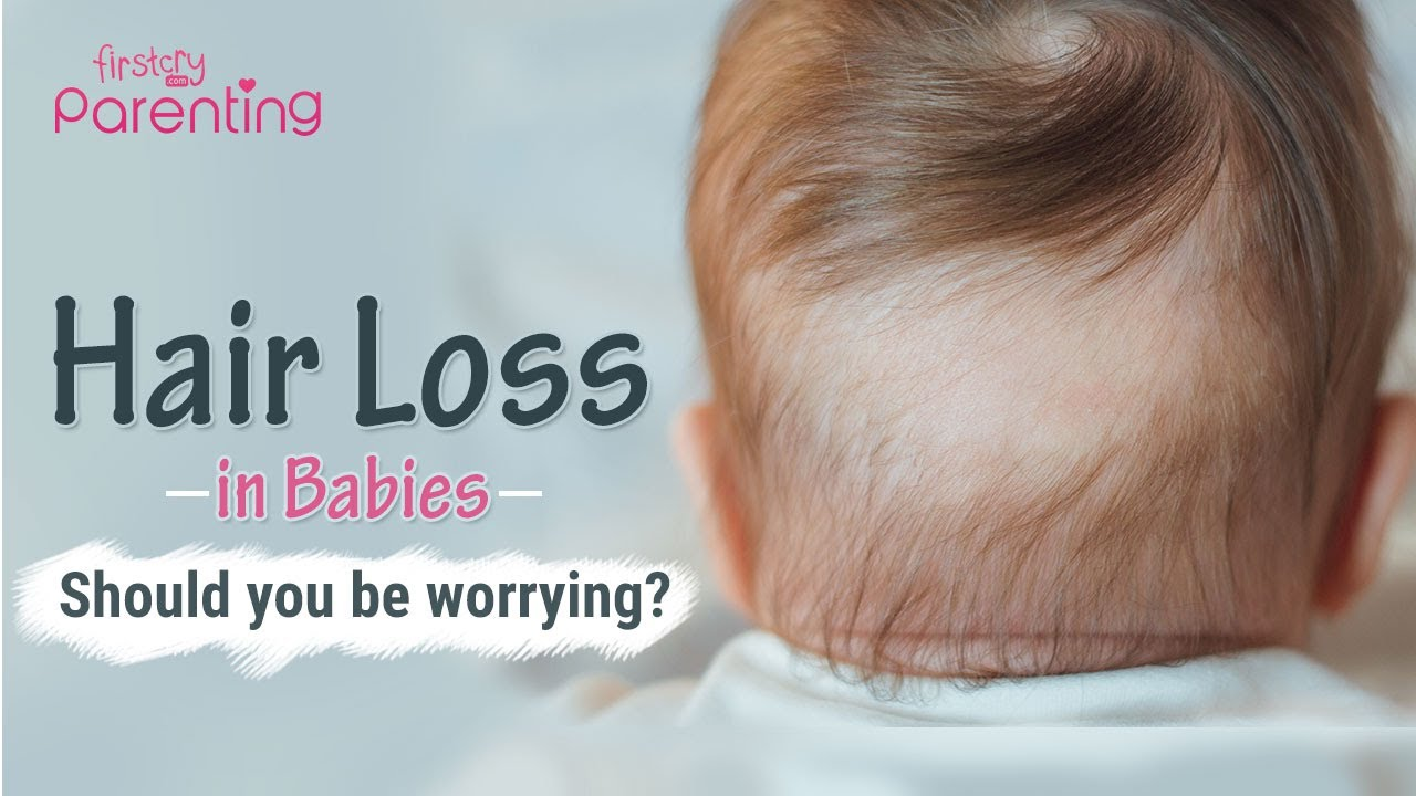 Baby Hair Loss – Reasons & Tips To Prevent