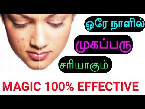 reduce pimples in one day