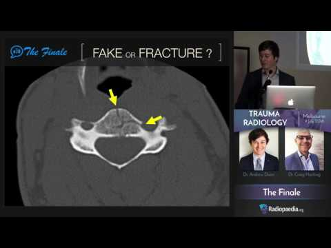 Trauma Radiology Course - Trailer