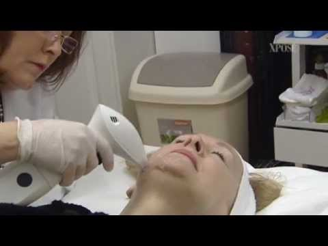 Reaction™ Radio Freuency Skin Tightening and Contouring - TV3's Xposé