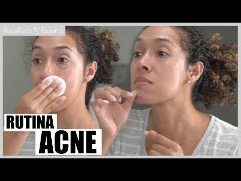 rutina-completa-para-eliminar-el-acnÉ---acne-adulto-hormonal
