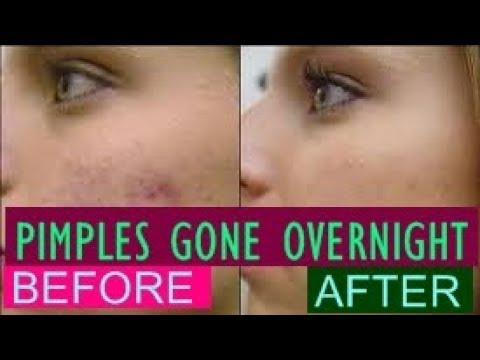 Toothpaste Remedy To Get Rid Of Pimples Overnight