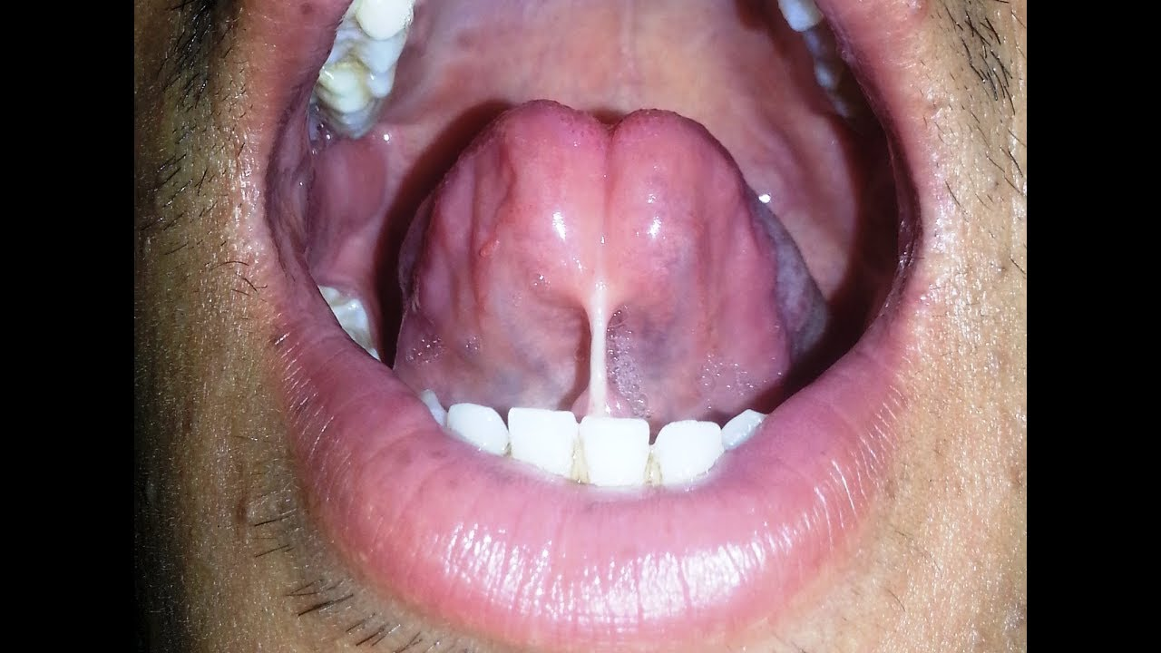 Lingual frenectomy cost   Best Dental in Houston, TX