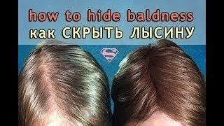 �������� ���� как скрыть ЛЫСИНУ  на голове. убрать залысины. Что делать если выпадают волосы ������