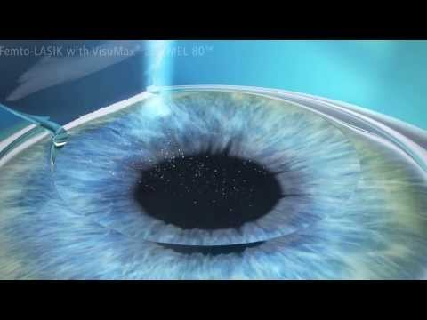 Cirurgia Refrativa a Laser: Lasik para Miopia, Astigmatismo e Hipermetropia