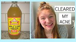 hqdefault - Drinking Apple Cider Vinegar Cures Acne