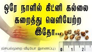 இத  கொஞ்சம்  முயற்ச்சி  செய்து பாருங்க... How to pass a kidney stone in 24 hours in tamil