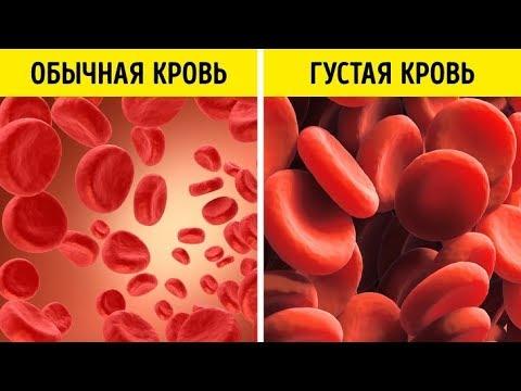 Густая вязкая КРОВЬ - причина ГИПЕРТОНИИ / Гематокрит / Фролов Ю.А.