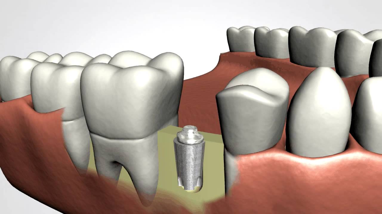dental implant quotes