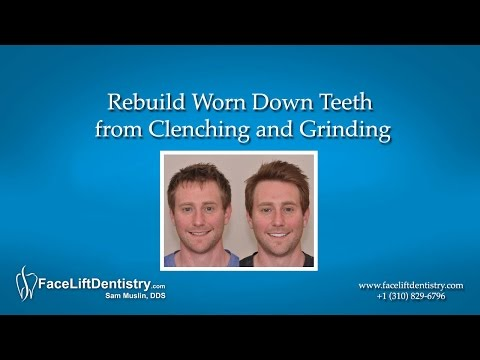 Rebuild Worn Down Teeth from Clenching and Grinding