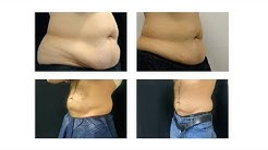 Coolsculpting Fat Freezing Treatment - Trifecta Med Spa NYC