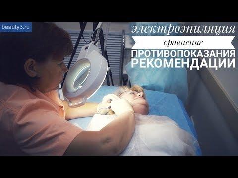 электроэпиляция в омске — ОмскМама