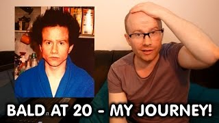 Going Bald At 20 - My Hilarious Hair Journey... With Photos!