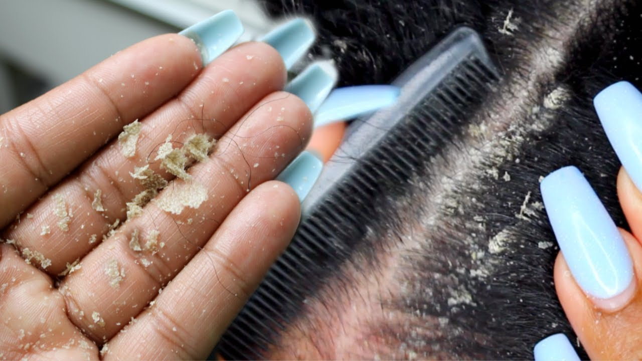 BIG FLAKES! Scalp scratching and picking | Satisfying Dandruff Removal ASMR