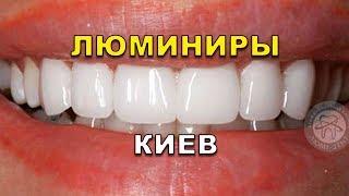 Все о Люминирах (голливудских винирах) в стоматологии Киева Украина (видео)(, 2017-08-22T06:19:15.000Z)
