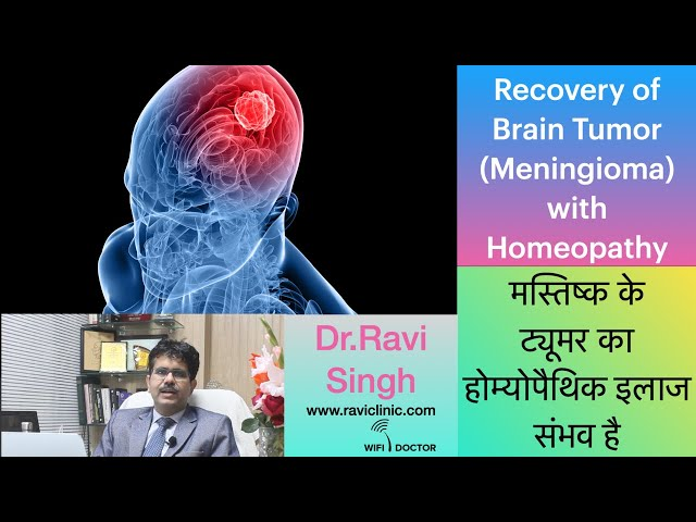 Recovery of Brain Tumor Case with Homeopathy Dr.Ravi Singh