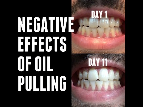 oil-pulling-experiments---negative/side-effects-|-day-11