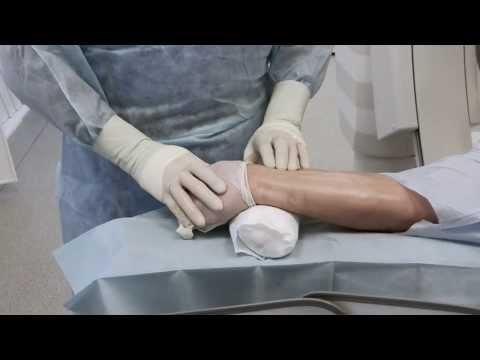 Амбулаторная коронарография