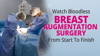 Watch Bloodless Breast Augmentation Surgery From Start To Finish - Edelstein Cosmetic - Toronto Thumbnail