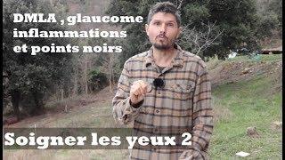 DMLA , glaucome, inflammations et points noirs - Soigner les yeux épisode 2 - regenere.org
